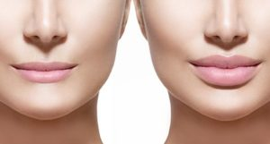 Hyaluronsäure Lippenunterspritzung Medical Beauty Aesthetic Frankfurt 23