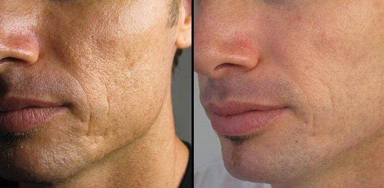 Microneedling Mikroneedling Medical Beauty Aesthetic Frankfurt 3