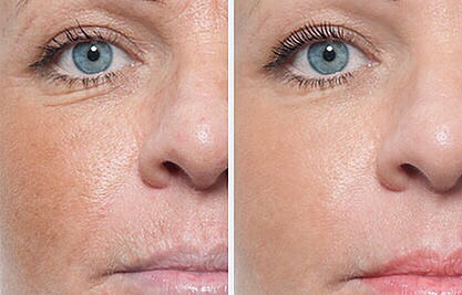 Microneedling Mikroneedling Medical Beauty Aesthetic Frankfurt 4