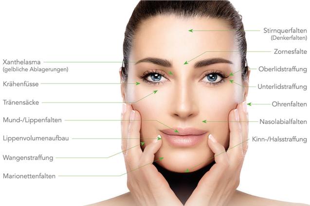 Hyaluronsäure Faltenunterspritzung Medical Beauty Aesthetic Frankfurt 25