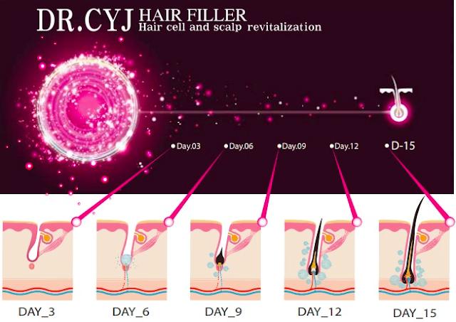 Hairfiller Haarwachstum anregen Medical Beauty Aesthetic 5