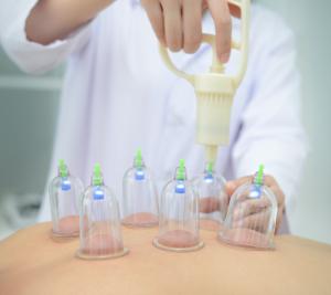 Schröpftherapie Schröpfen Hijama Heilpraktiker Medical Beauty Aesthetic Frankfurt 1