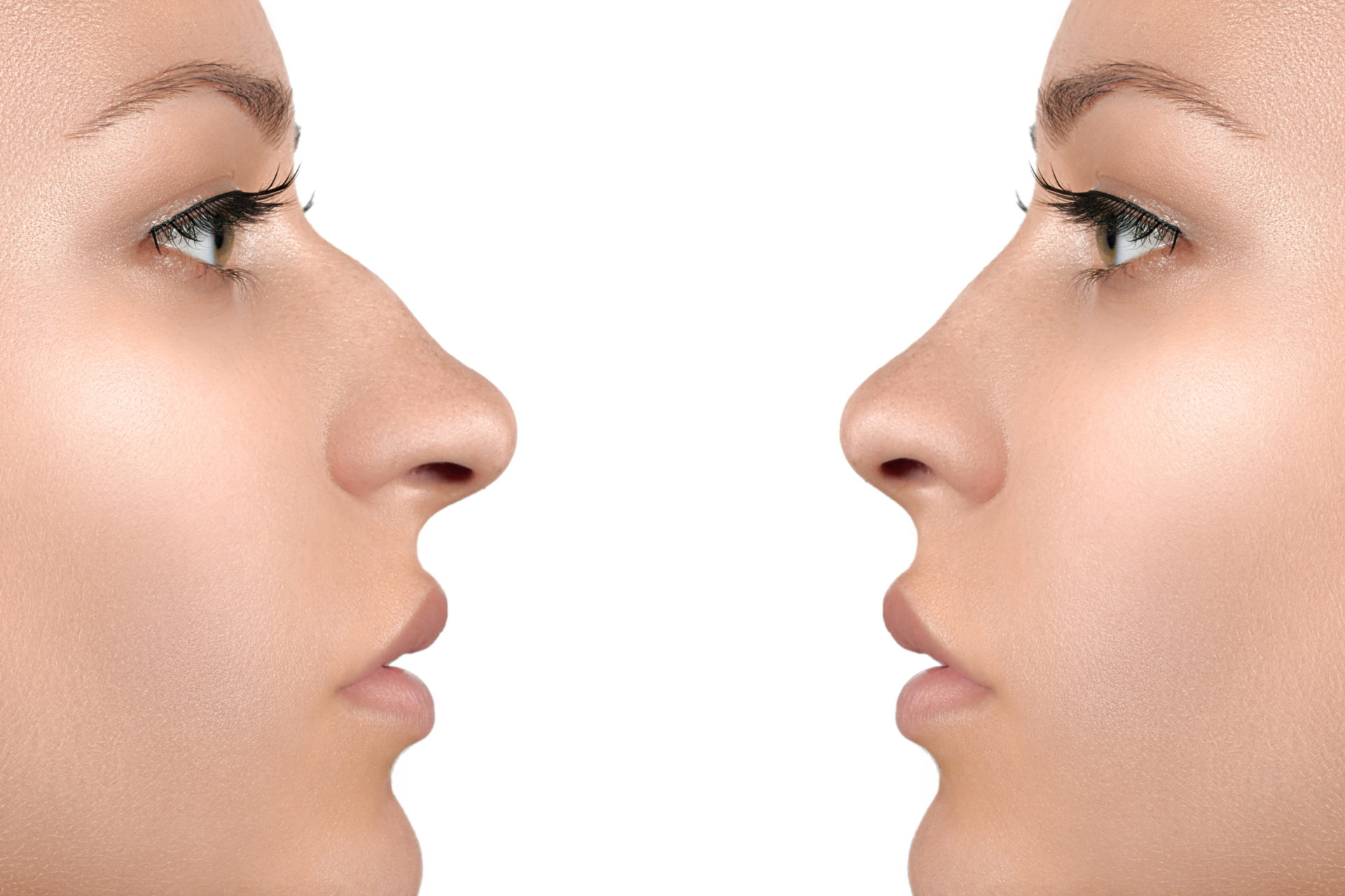 Hyaluronsäure Nasenkorrektur Nasenunterspritzung Medical Beauty Aesthetic Frankfurt