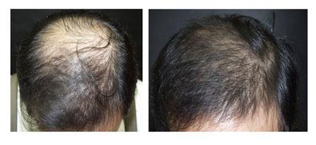 Hairfiller Haarwachstum anregen Medical Beauty Aesthetic 2