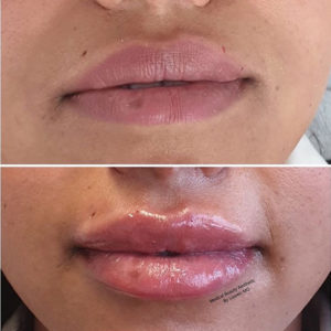 Hyaluronsäure Lippenunterspritzung Medical Beauty Aesthetic Frankfurt 8
