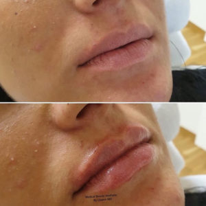 Hyaluronsäure Lippenunterspritzung Medical Beauty Aesthetic Frankfurt 5