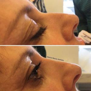 Hyaluronsäure Nasenkorrektur Nasenunterspritzung Medical Beauty Aesthetic Frankfurt 2
