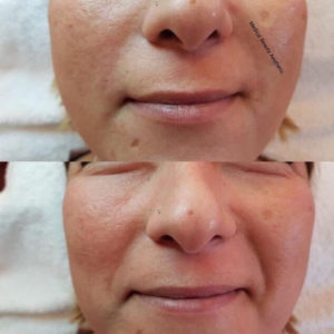 Hyaluronsäure Faltenunterspritzung Nasolabialfalten Medical Beauty Aesthetic Frankfurt 1