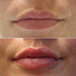 Hyaluronsäure Lippenunterspritzung Medical Beauty Aesthetic Frankfurt 15