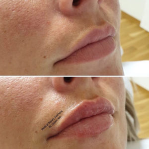 Hyaluronsäure Lippenunterspritzung Medical Beauty Aesthetic Frankfurt 16