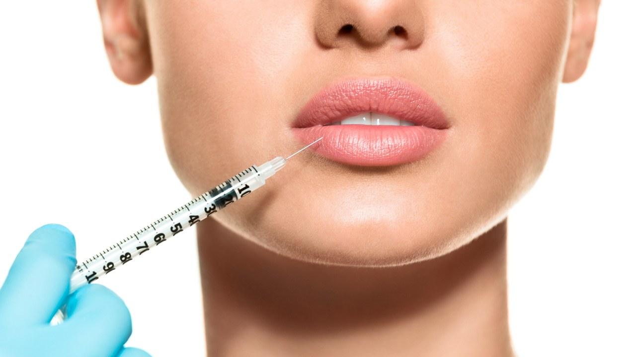 Hyaluronsäure Lippenunterspritzung Medical Beauty Aesthetic Frankfurt 1