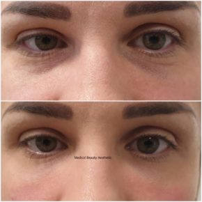 Augenringe Tränenrinne unterspritzen Medical Beauty Aesthetic Frankfurt