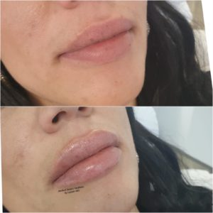 Lippenunterspritzung Medical Beauty Aesthetic Frankfurt 18