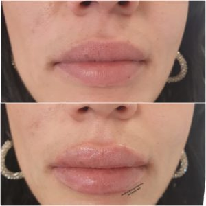 Lippenunterspritzung Medical Beauty Aesthetic Frankfurt 19