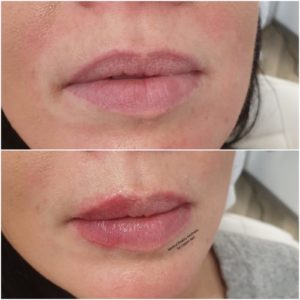 Lippenunterspritzung Medical Beauty Aesthetic Frankfurt 20