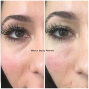 Augenringe Tränenrinne unterspritzen Medical Beauty Aesthetic Frankfurt 2